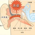 外耳炎 原因と治療法は?